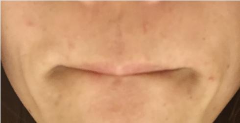 鼻下の写真