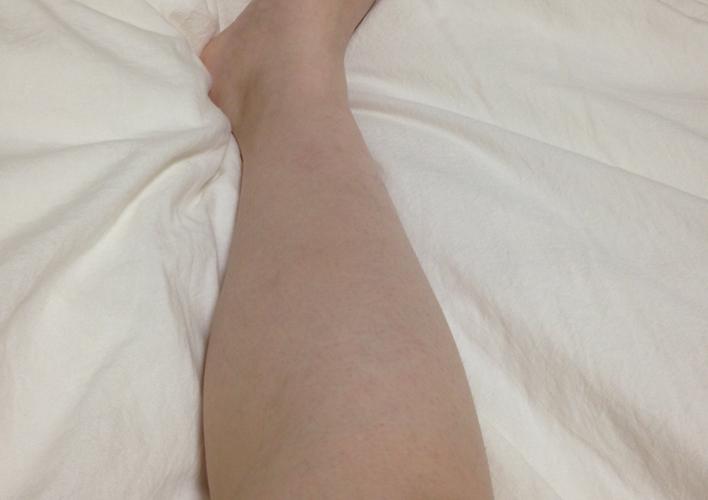キレイモで脱毛後の足