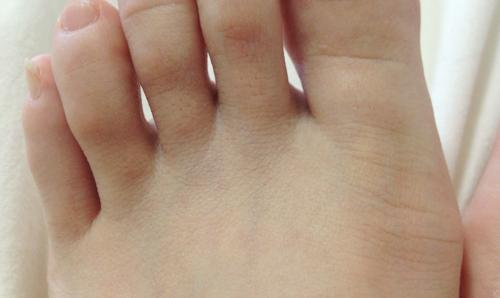 シースリーひざ下脱毛の効果(足指)1ヶ月後の状態
