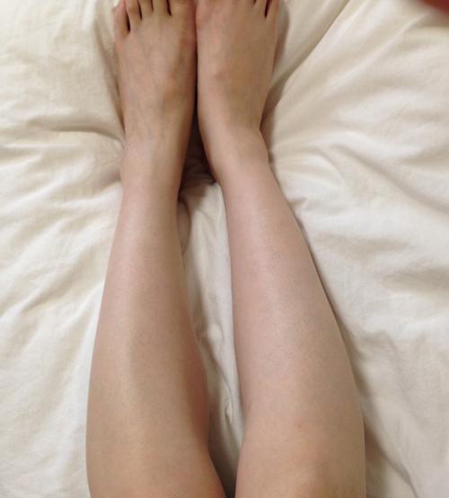 シースリーひざ下脱毛の効果(全体)1ヶ月後の状態