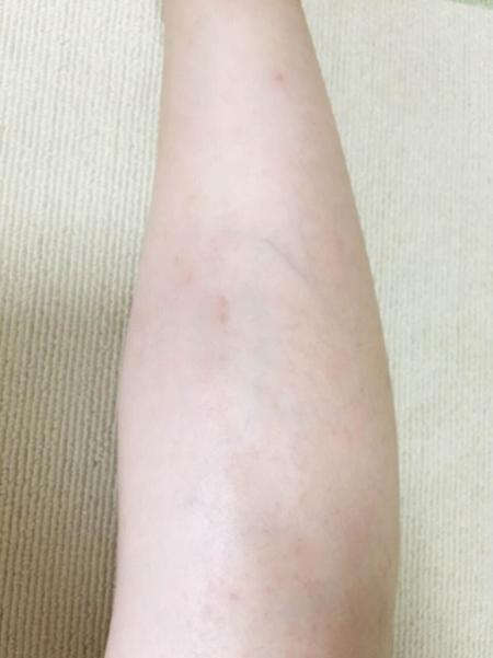 ミュゼ錦糸町店で脚脱毛6回した後の脚の状態(ひざ下)