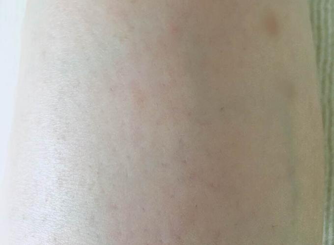 ミュゼ錦糸町店で脚脱毛6回した後の脚の状態(ひざ下アップ)