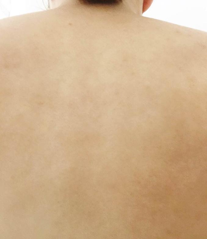 ミュゼ錦糸町店で背中脱毛8回した後の背中の状態