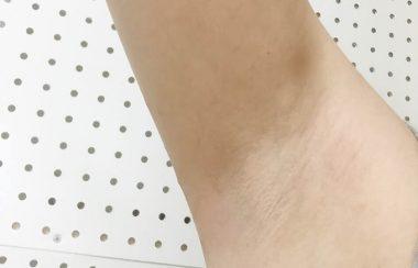 ミュゼ錦糸町店で脇脱毛8回した後の脇の状態