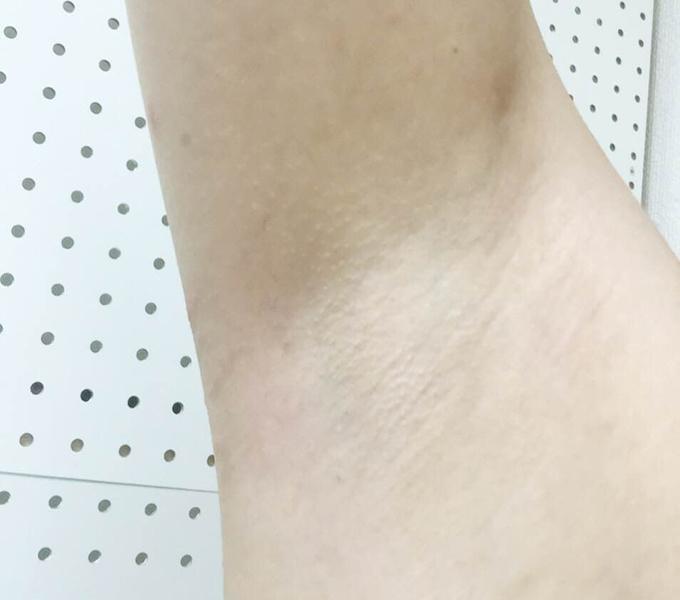 ミュゼ錦糸町店で脇脱毛8回した後の脇の状態(アップ)